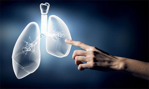 早期肺癌能治好吗?基因检测可快速治愈早期肺癌